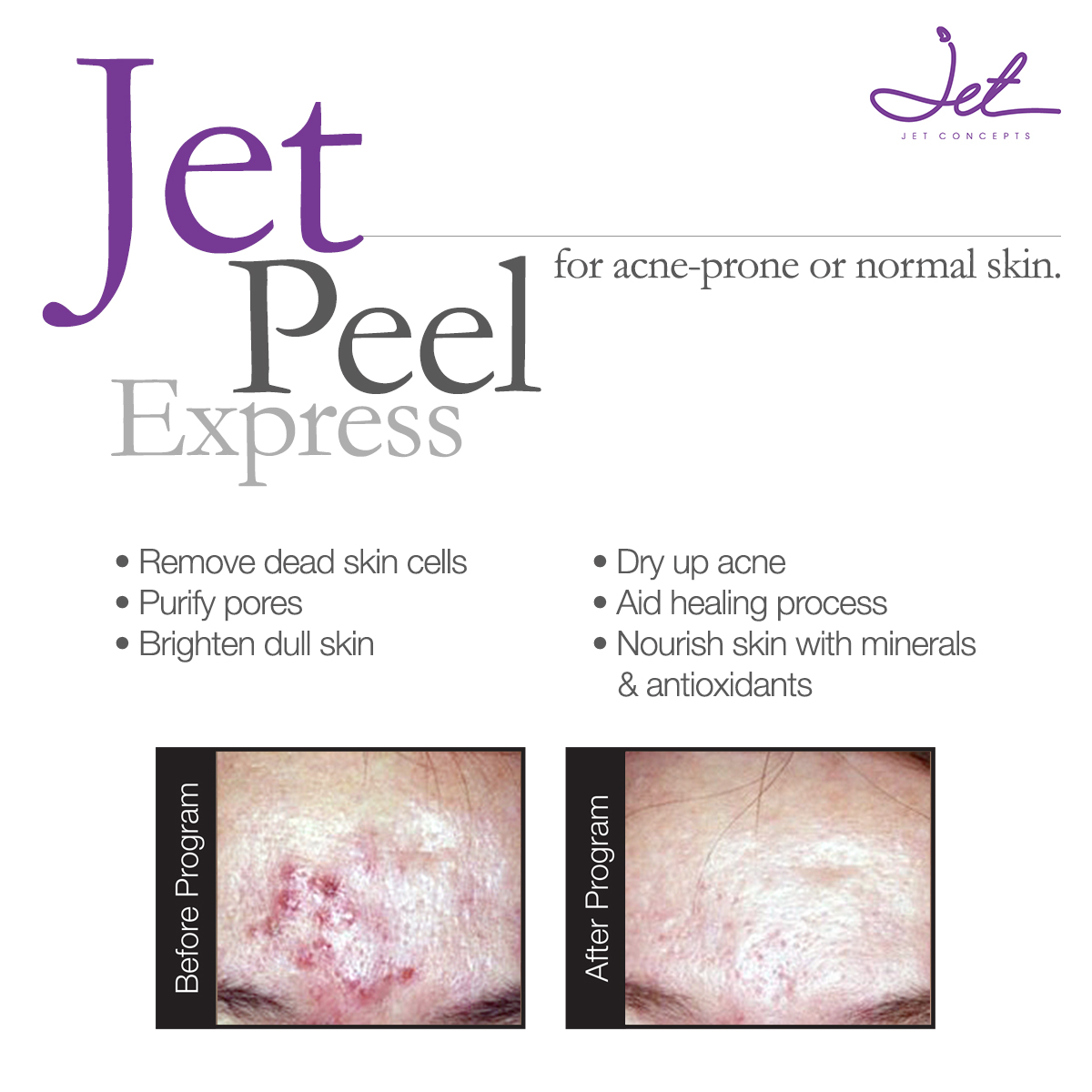Jet Concepts Treatment - Jet Peel Express